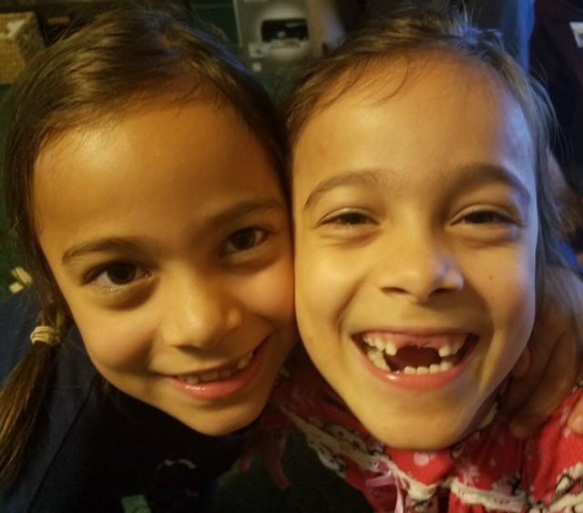 toothless twins